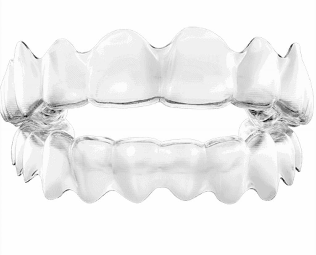 Bildschirmfoto 2021 04 21 um 12.45.37 1024x828 - Unsichtbare Zahnkorrekturschienen (Aligner)